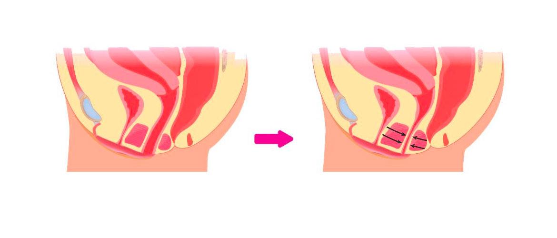 Различные проявления болевых ощущений у женщин