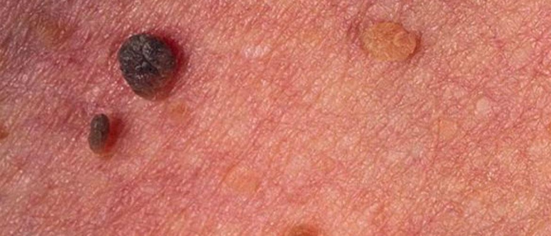 Симптомы бовеноидного папулёза