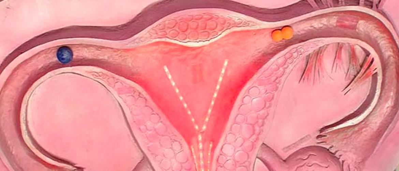 ИППП список инфекций у женщин: гонорея