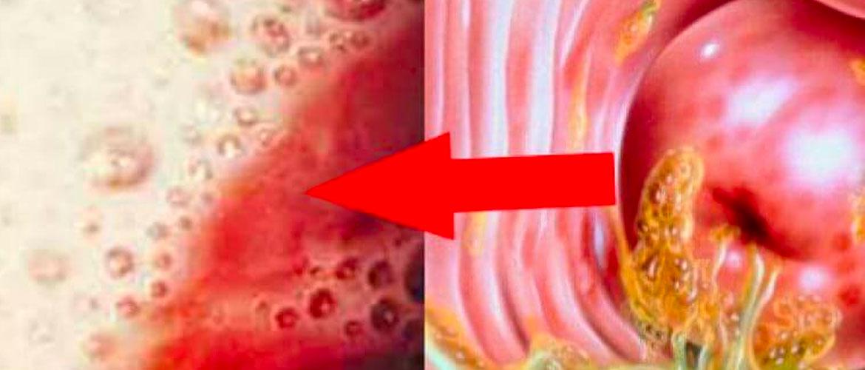 ИППП список инфекций у женщин: трихомониаз