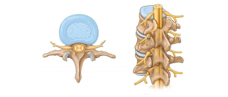 Нейросифилис: поражение спинного мозга