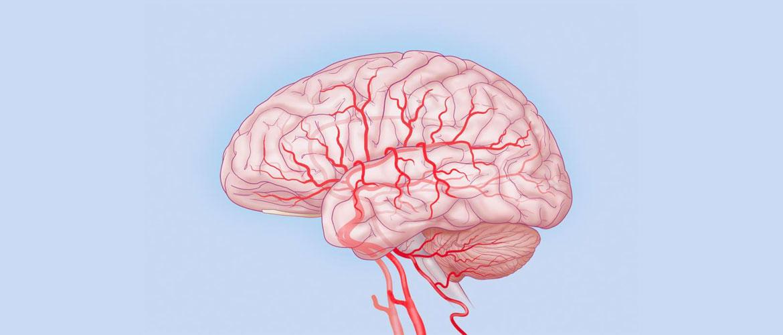 Нейросифилис: поражение сосудов мозга