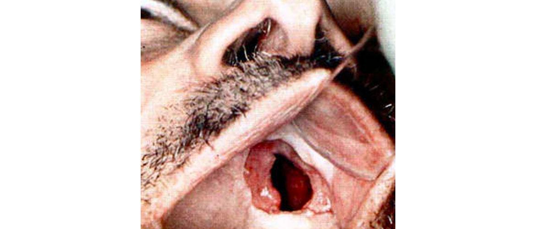 Третичный сифилис: диагностика
