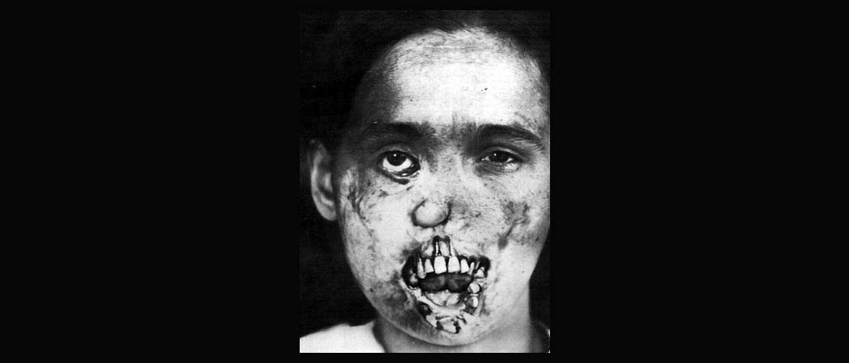 Третичный сифилис: поражение кожных покровов