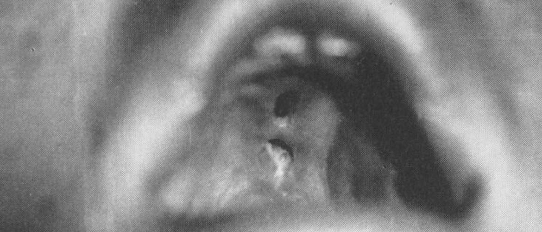 Третичный сифилис: поражение слизистых оболочек организма