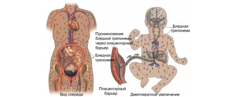 врожденный сифилис: причины возникновения